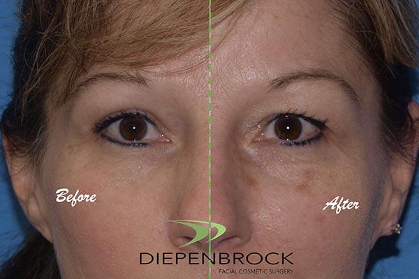 Blepharoplasties Before & After Dr Diepenbrock 19