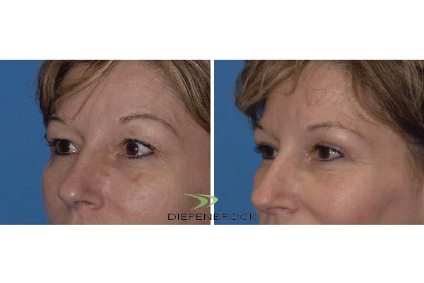 Blepharoplasties Before & After Dr Diepenbrock 21