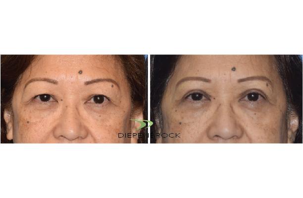 Blepharoplasties Before & After Dr Diepenbrock 22