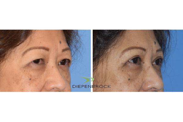 Blepharoplasties Before & After Dr Diepenbrock 23