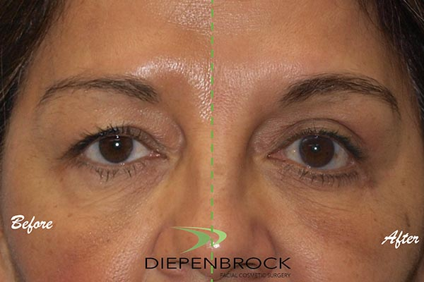 Blepharoplasties Before & After Dr Diepenbrock 24