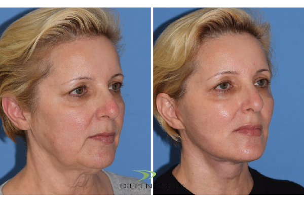 Diepenbrock Face & Neck Before and After 10