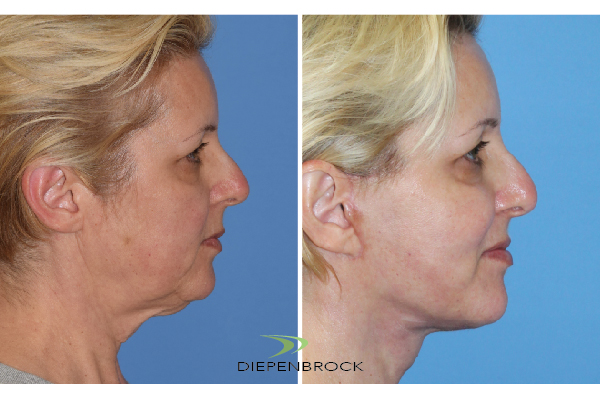Diepenbrock Face & Neck Before and After 11