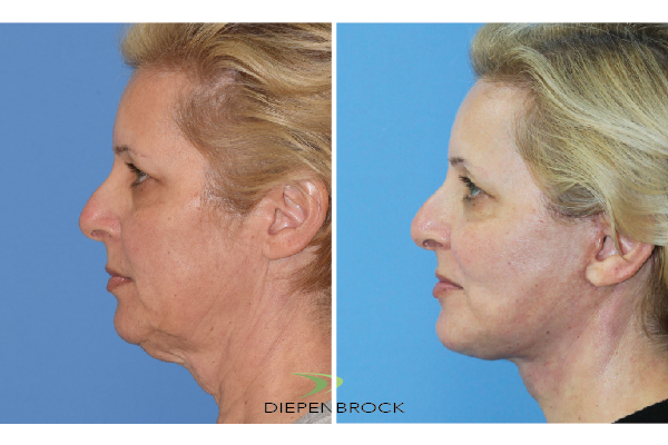 Diepenbrock Face & Neck Before and After 12