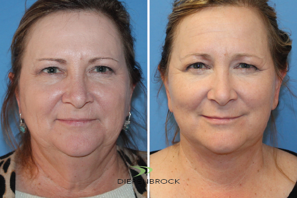 Diepenbrock Face & Neck Before and After 13