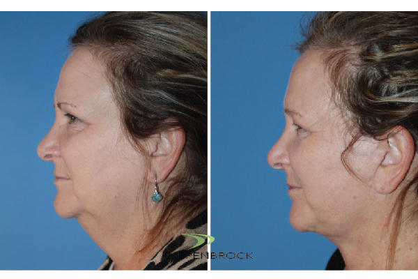 Diepenbrock Face & Neck Before and After 14