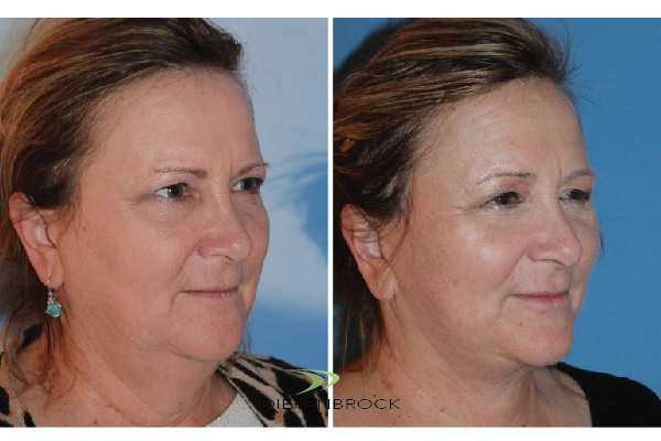 Diepenbrock Face & Neck Before and After 15