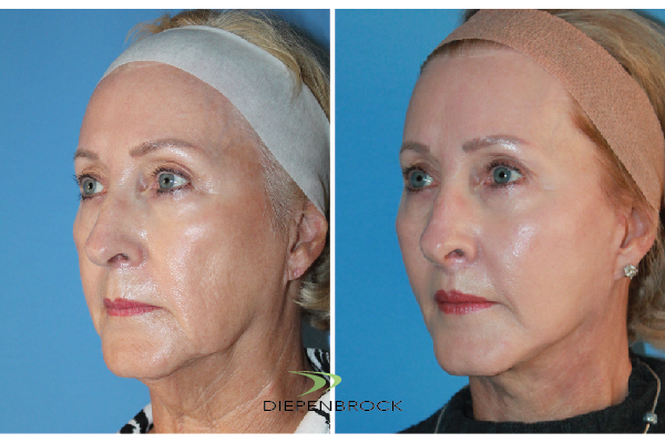 Diepenbrock Face & Neck Before and After 17