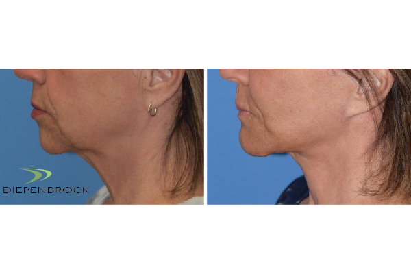 Diepenbrock Face & Neck Before and After 2