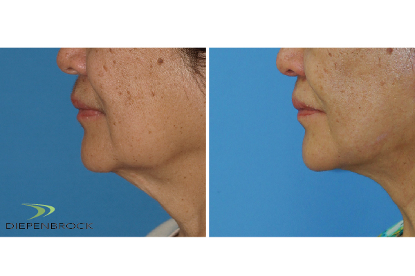 Diepenbrock Face & Neck Before and After 3