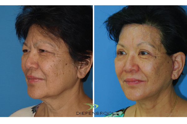 Diepenbrock Face & Neck Before and After 4