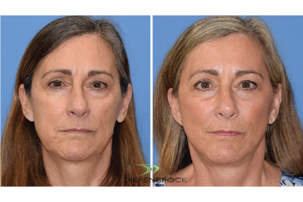 Diepenbrock Face & Neck Before and After 6