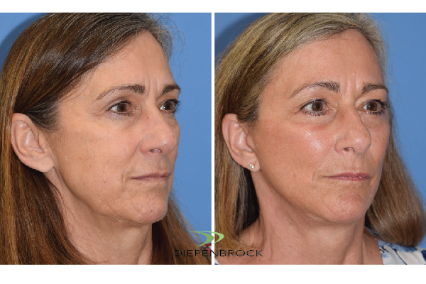 Diepenbrock Face & Neck Before and After 7