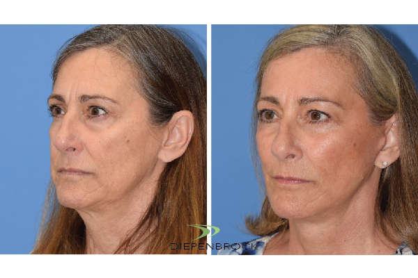 Diepenbrock Face & Neck Before and After 8