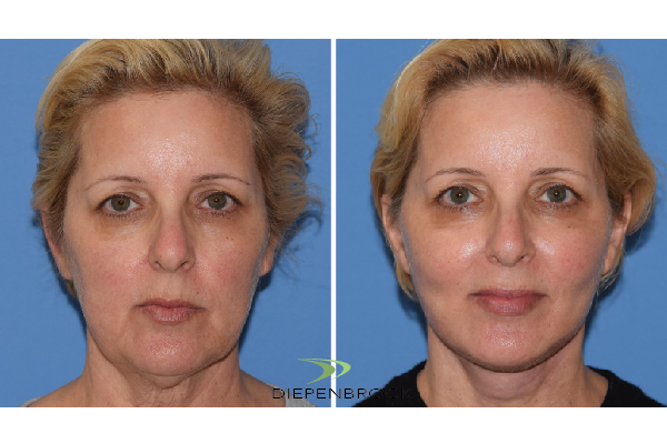 Diepenbrock Face & Neck Before and After 9